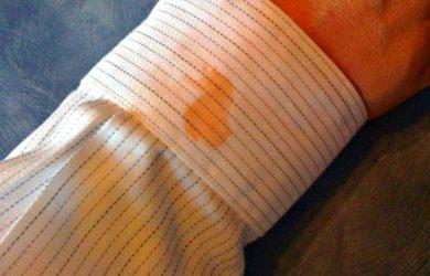 Tirar Nódoas de Gordura de Tecidos